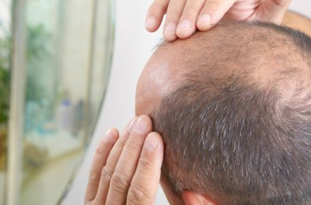 Hair Transplant – Why Is It Better Than Other Hair Loss Treatments?