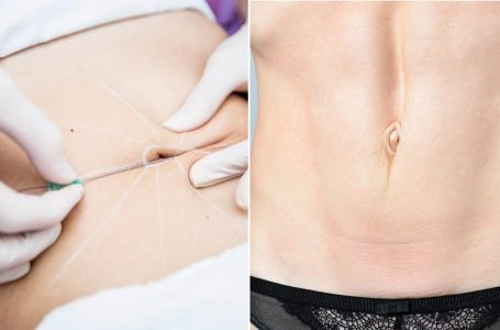 Tummy tuck and breast lift are common plastic surgery procedures done by doctors