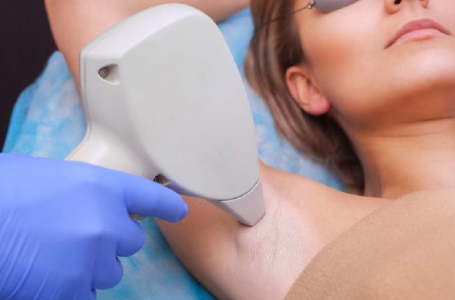 3 Key Facts To Know Before Getting Laser Hair Removal