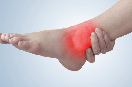 How to Treat and Prevent the Onset of Achilles Tendonitis