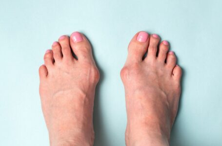 Bunion Surgery | Questions And Answers