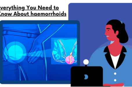 Everything You Need to Know About haemorrhoids