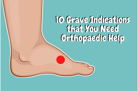 10 Grave Indications that You Need Orthopaedic Help